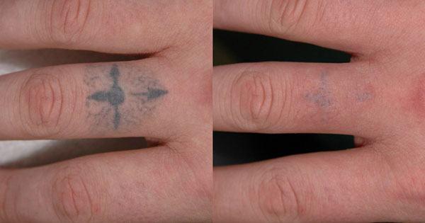 Quanto custa remover tatuagem com laser?